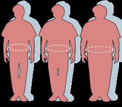 elhízott pár lefogy