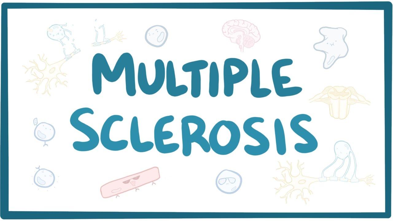 Mintegy 10 ezer embert érint idehaza a Sclerosis Multiplex – Semmelweis Médiasarok