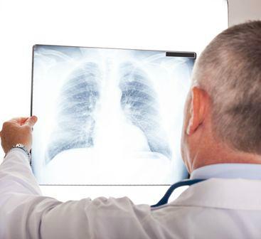 Actinomycosis pulmonis