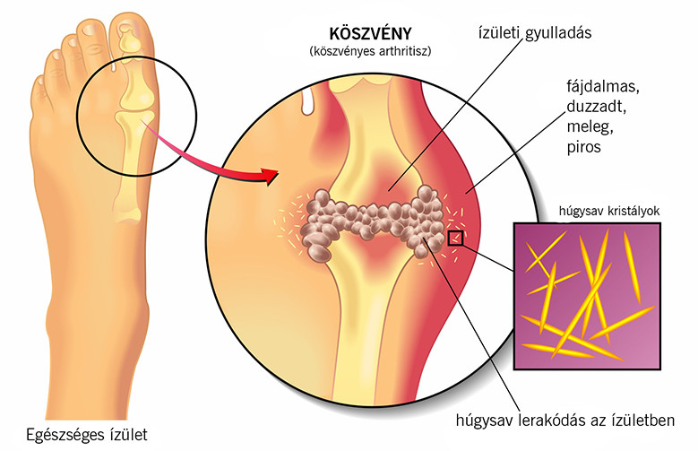 sclerosis multiplex tünetei fogyás)