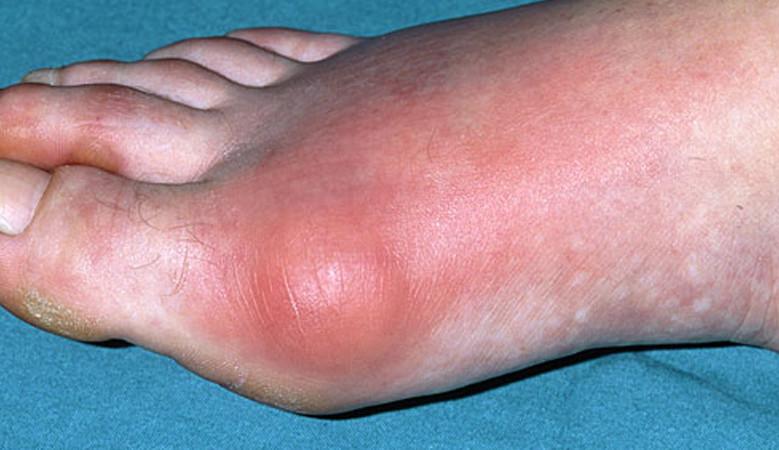 sclerosis multiplex tünetei fogyás chloe fogyás geordie partján