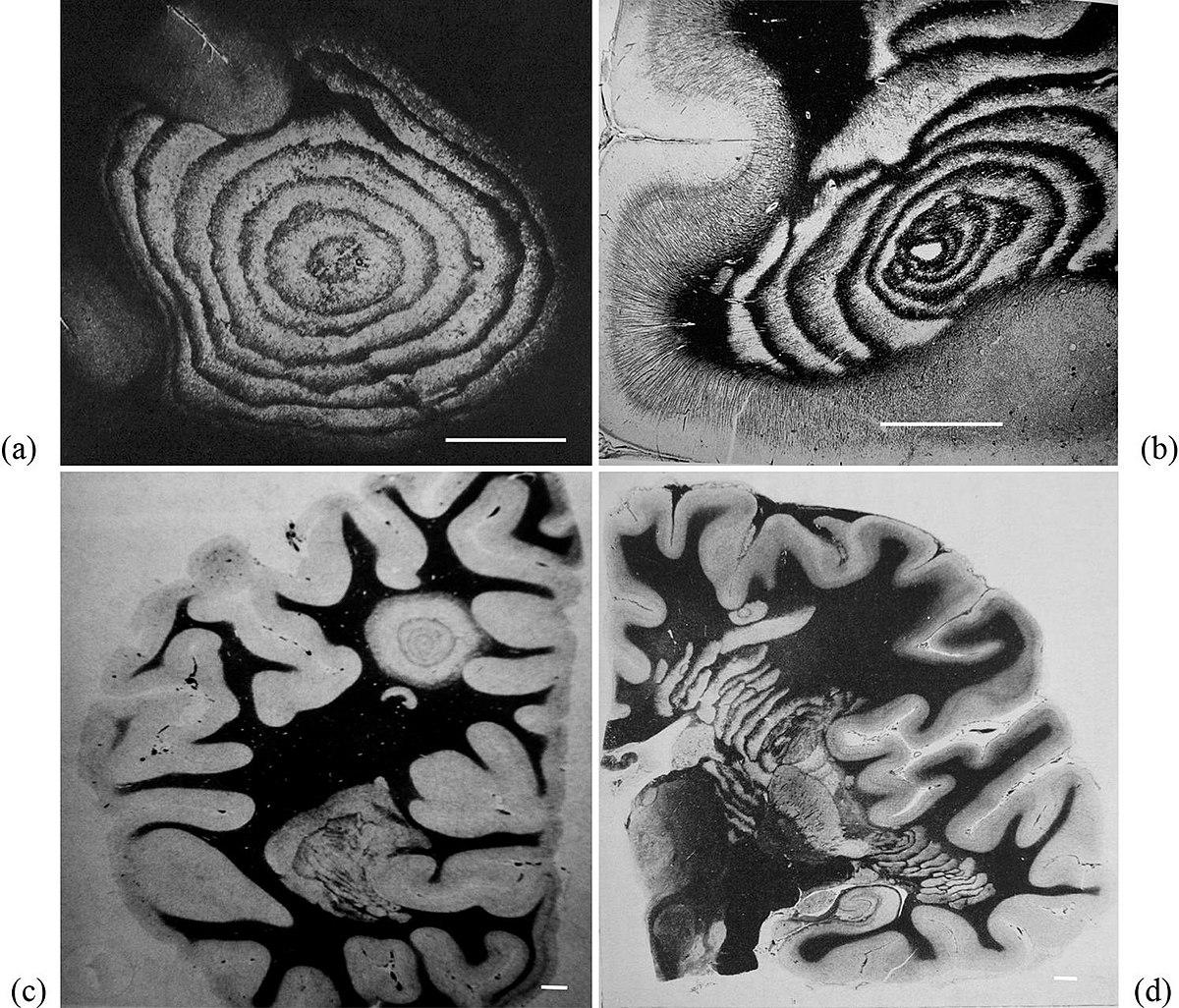 lefogyhat a sclerosis multiplexben?)