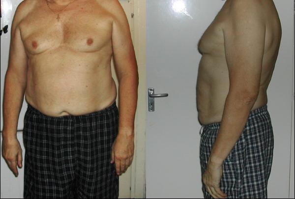 hogyan lehet lefogyni 40 éves koromban kevesebb szart enni veszíti el a zsírt