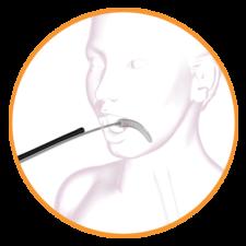 orbera fogyás eredmények