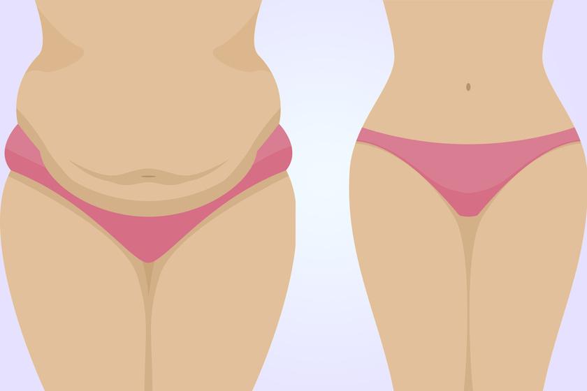 hogyan éget vastag zsírt melyik a legjobb edzés fogyáshoz