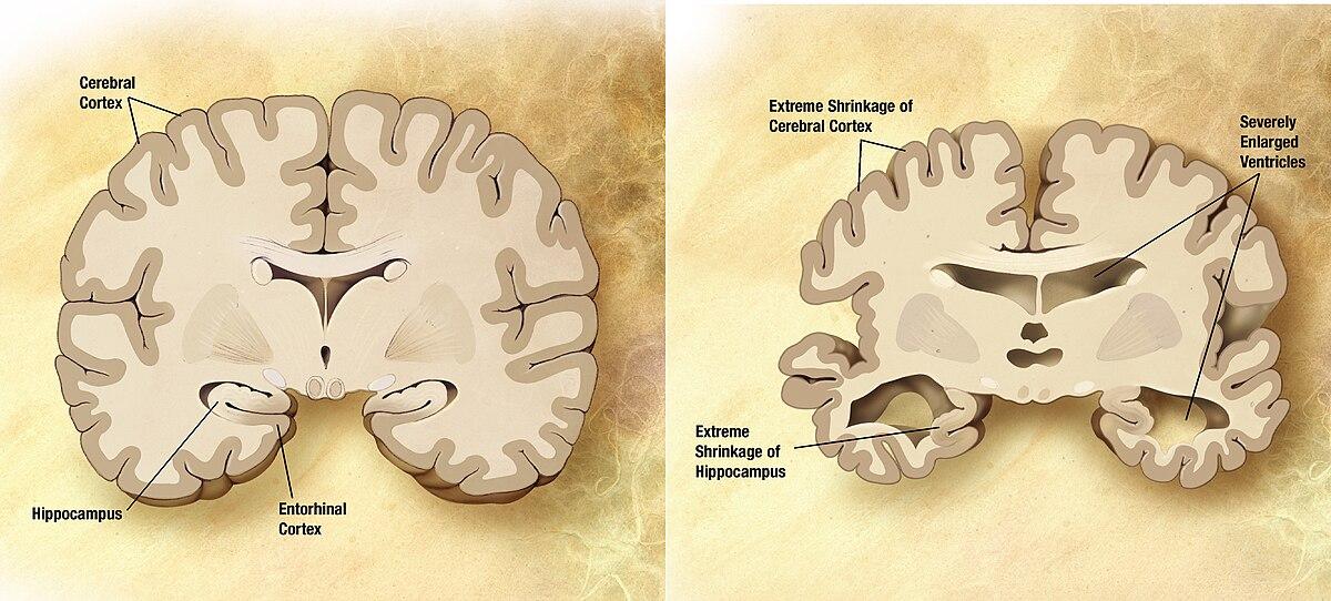 az Alzheimer- kórhoz kapcsolódó fogyás)