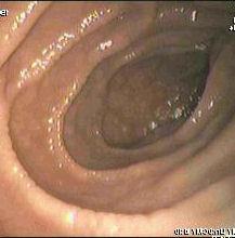 celiakia tünetek fogyás