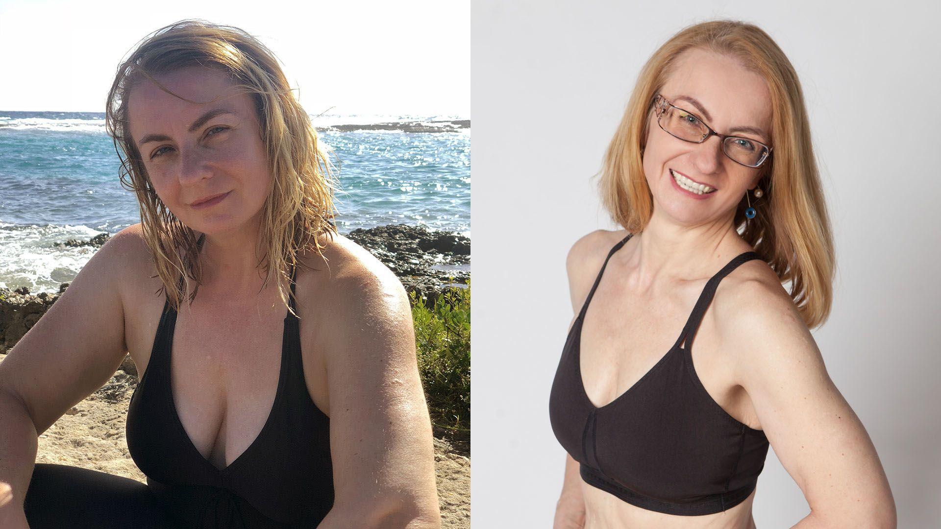 90 kilót fogyott a nővér, mert rettegett, hogy úgy jár, mint a betegei