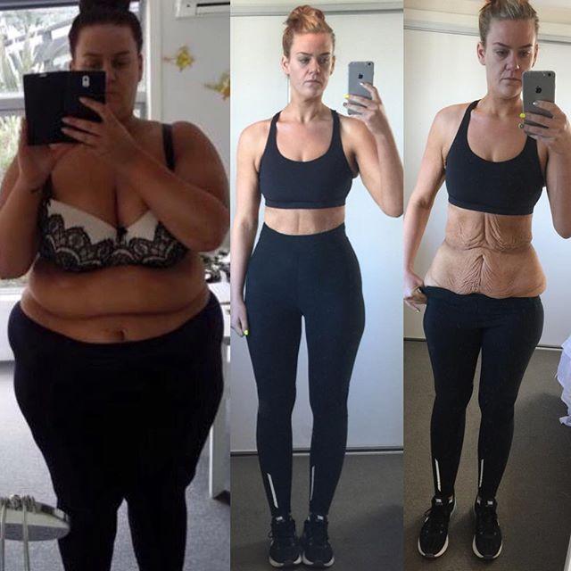 10 kiló fogyás egy hónap alatt - Fogyókúra   Femina