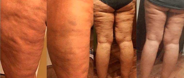 súlycsökkentheti a cellulitot?)