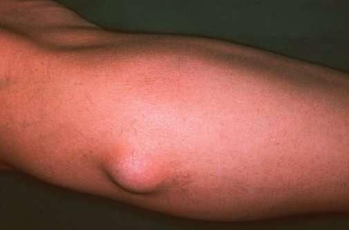 hogyan lehet eltávolítani a test zsírdaganatát